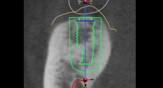 Mon 27 Mar '17: CBCT in Periodontics
