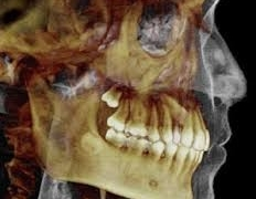 Fri 12 Jan '18: CBCT Course for Referrers - Level 1