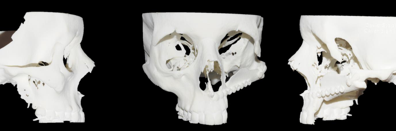 3D Printed Model for Jaw Reconstruction Surgery in Caner Patient